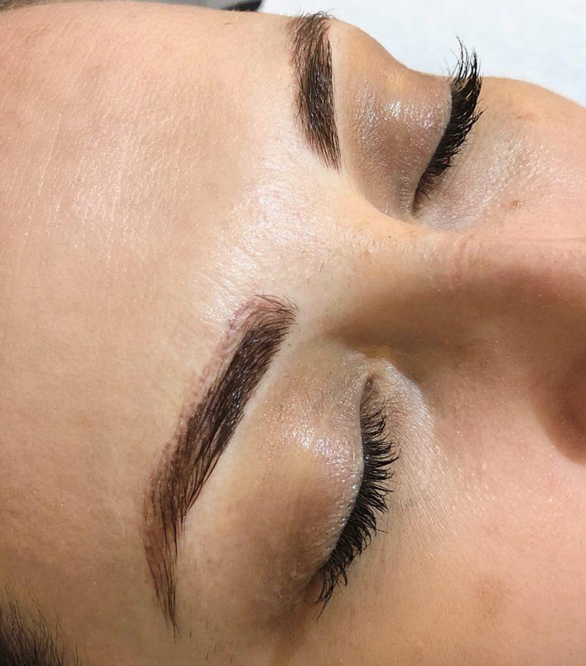 eyebrow treatment in Dubai